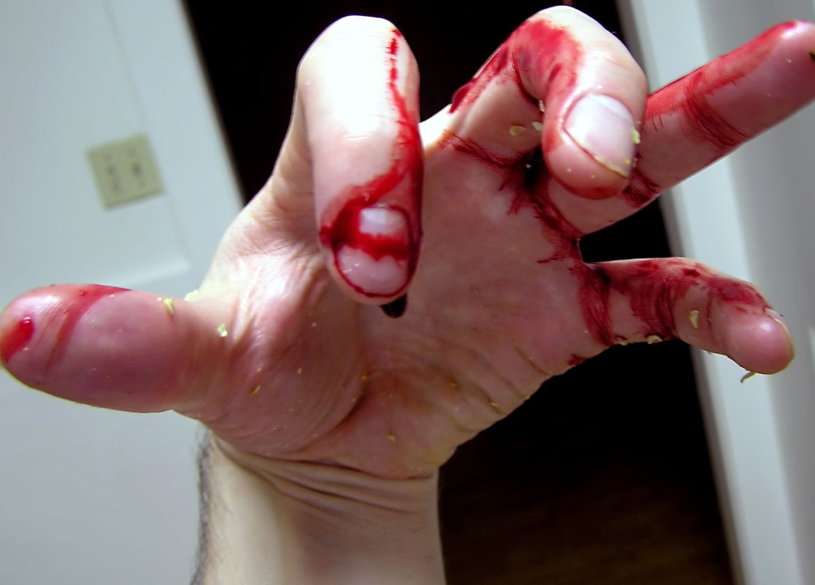 The Bloody Hand
